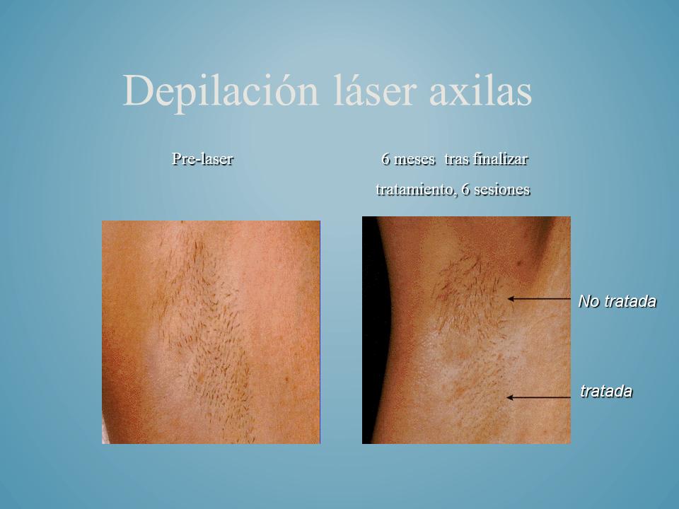 depilacion laser axilas foto antes despues alejandrita