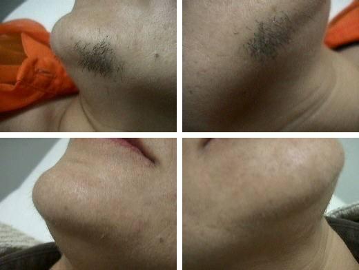 eiminacion del vello facial con la depilacion laser fotos antes y despues, paciente de optim laser terrassa sabadelll granollers