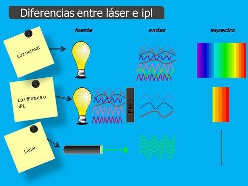 diferencias laser ipl o fotodepilacion