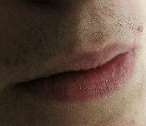 foto labio facial antes del tratamiento de depilacion laser alejandrita optim laser