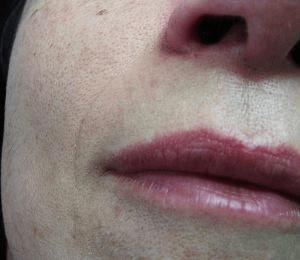 labio facial despues de un tratamiento de depilacion laser alejandrita en optim laser