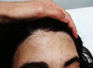 foto de la frente de una paciente de optim laser antes de la depilacion laser alejandrita