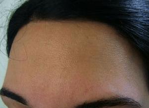 zona de la frente de una chica despues de la depilacion laser alejandrita