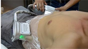 como se coloca la criolipolisis en abdomen