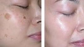 eliminacion manchas piel cara