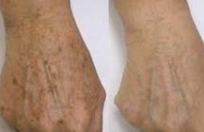 eliminación manchas cutáneas envejecimiento